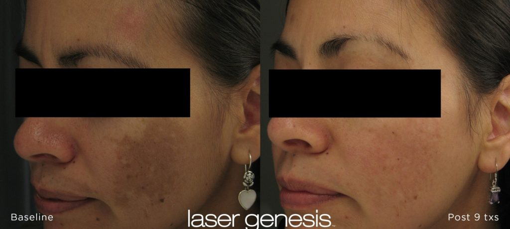 Cutera Laser Genesis Before and After